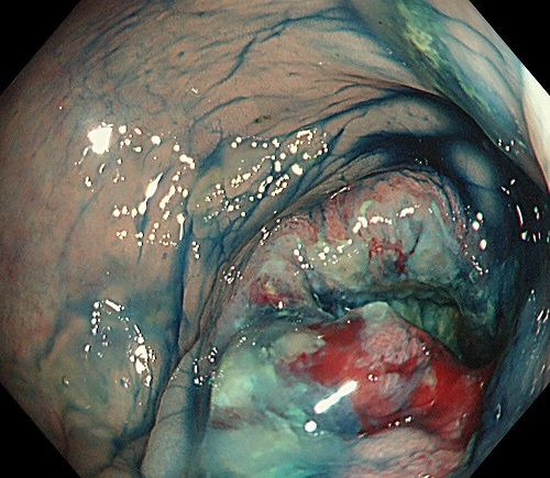 【症例1】 S状結腸癌