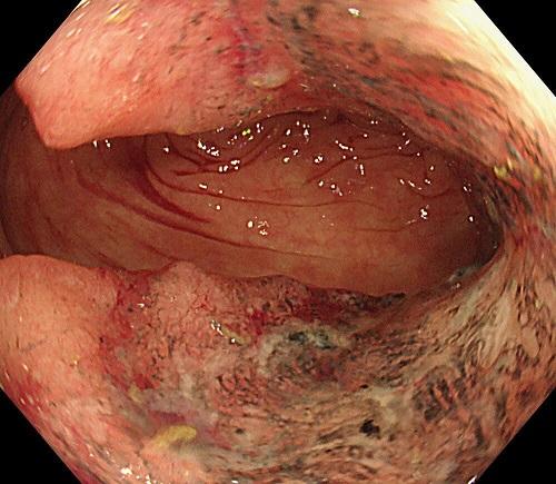 【症例2】 横行結腸癌